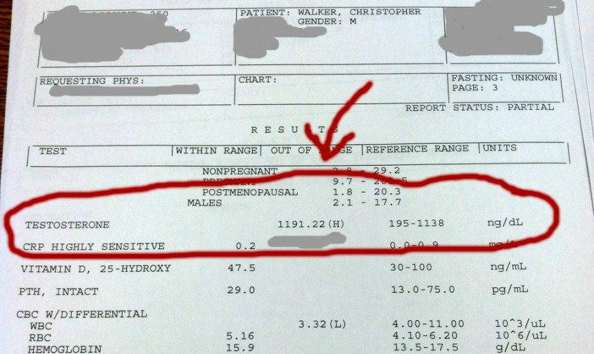 1192-ngdL-testosterone